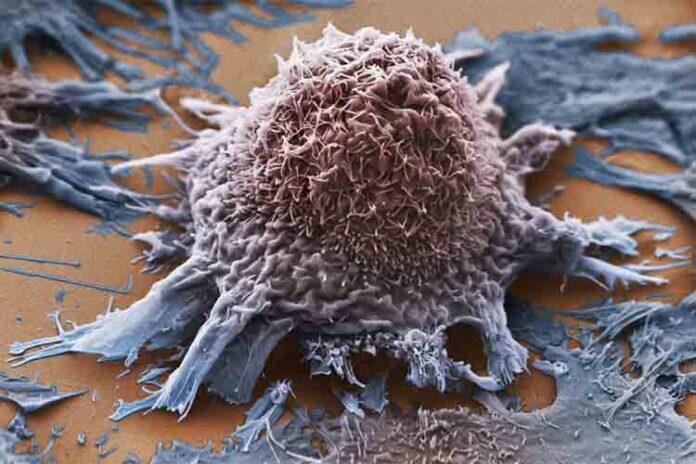 Muchos medicamentos contra el cáncer apuntan a objetivos moleculares incorrectos