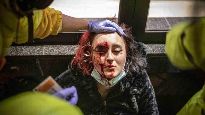 Echenique pide investigar la mutilación del ojo de una joven en las protestas de Barcelona