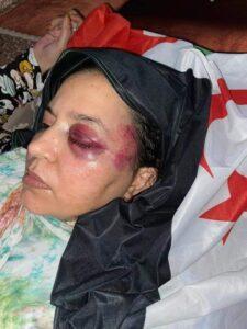 El Polisario pide a la ONU que intervenga por el acoso de Marruecos a la activista Jaya